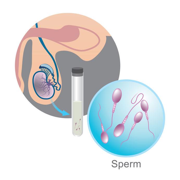 איור פוריות הגבר - דר' עינת שלום פז, טיפולי פוריות, הפריה חוץ גופית, רופאת פוריות, רופאה גניקולוגית מומלצת וטיפולי פריון